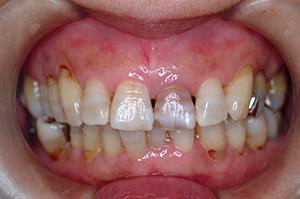 HP2:前歯部ジルコニア1(審美歯科)50代女性