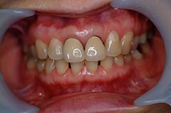HP4:前歯部ジルコニア2(歯肉トリートメント)40代女性1