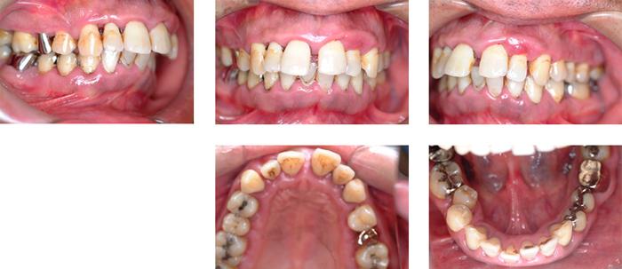 歯周病治療(保険診療)中等度から重度歯周病