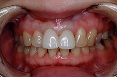 HP4:前歯部ジルコニア2(歯肉トリートメント)40代女性3