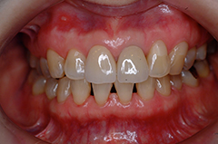 HP4:前歯部ジルコニア2(歯肉トリートメント)40代女性6