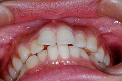 HP4:前歯部ジルコニア2(歯肉トリートメント)40代女性2