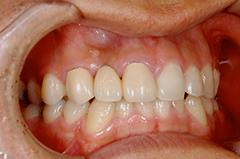HP4:前歯部ジルコニアブリッジ4(歯肉移植→歯槽増大)30代女性1
