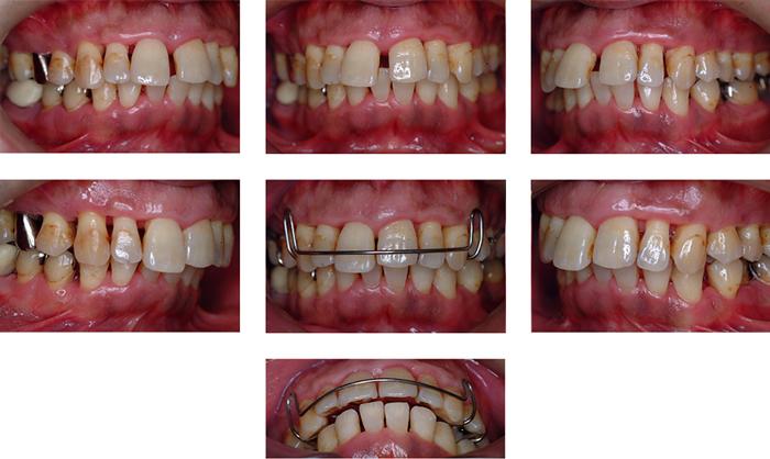 歯周基本治療及び歯列不正の改善