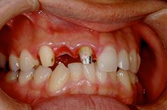 HP4:前歯部ジルコニアブリッジ4(歯肉移植→歯槽増大)30代女性3