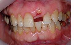 前歯部インプラント治療2,(打撲による歯冠破折)60代男性1