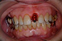 前歯部インプラント治療2,(打撲による歯冠破折)60代男性5