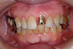 前歯部インプラント治療2,(打撲による歯冠破折)60代男性6