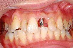 HP3:前歯部インプラント治療(虫歯による歯根吸収)20代女性3
