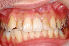 HP3:前歯部インプラント治療(虫歯による歯根吸収)20代女性4