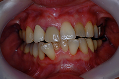 HP3:前歯部インプラント治療(虫歯による歯根吸収)20代女性5