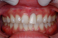 HP4:前歯部インプラント&ジルコニア(歯根破折)30代女性4