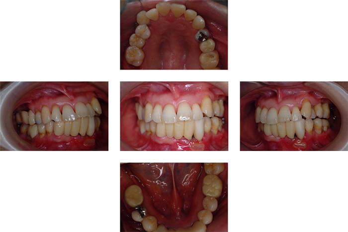 歯周病治療(保険診療後自由診療)中等度から重度歯周病