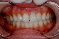 HP4:前歯部インプラント&ジルコニア(歯根破折)30代女性5