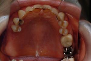 HP4:ガイデッドサージェリー1(右上欠損及び歯槽骨非薄)60代女性1