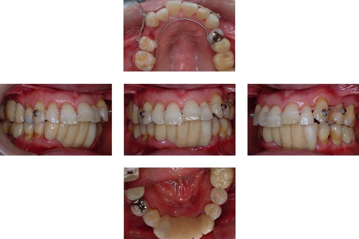 歯周基本治療後の小矯正治療