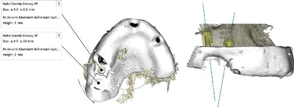 サージカルガイド製作のためのラジオグラフィックガイドによるCT撮影3