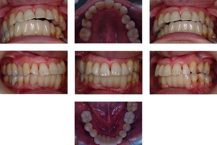術後:歯周治療は感染(汚れ)と力(咬み合わせ)のコントロールが大切